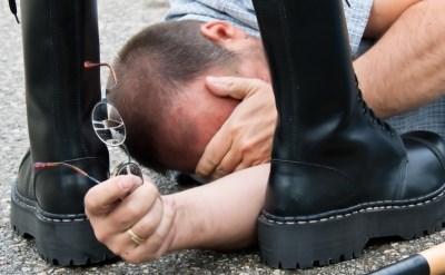 אדם נפגע מאלימות - אתר משפטי - תמונת כתבה