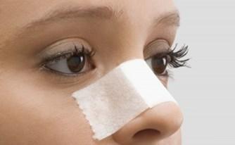 ניתוח פלסטי באף - האפשרות לסיבוכים ורשלנות