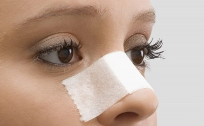 ניתוח פלסטי באף - האפשרות לסיבוכים ורשלנות - תמונת כתבה