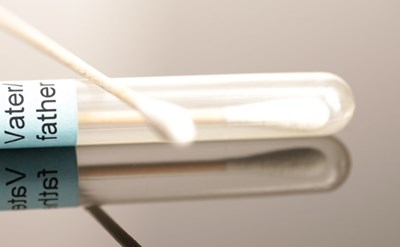 בדיקת אבהות במעבדה- ממתינים לתוצאות - תמונת כתבה