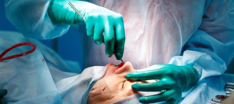 ניתוח אף - במהלכו, בבית החולים
